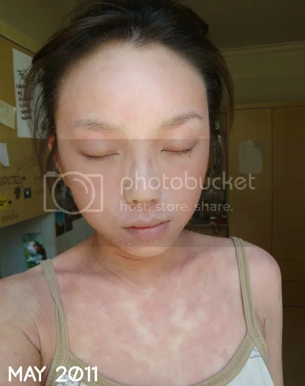 topical steroids withdrawal, initial stages, red skin syndrome