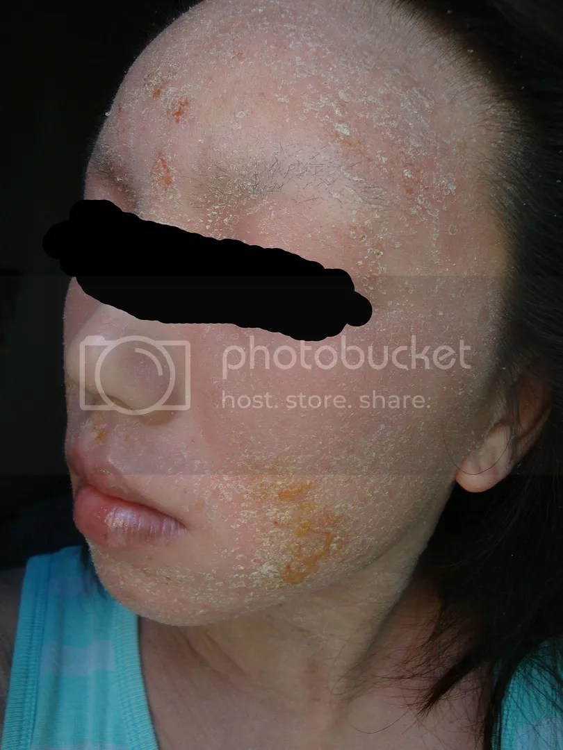 topical steroid withdrawal, yellow fluid oozing from face, not eczema