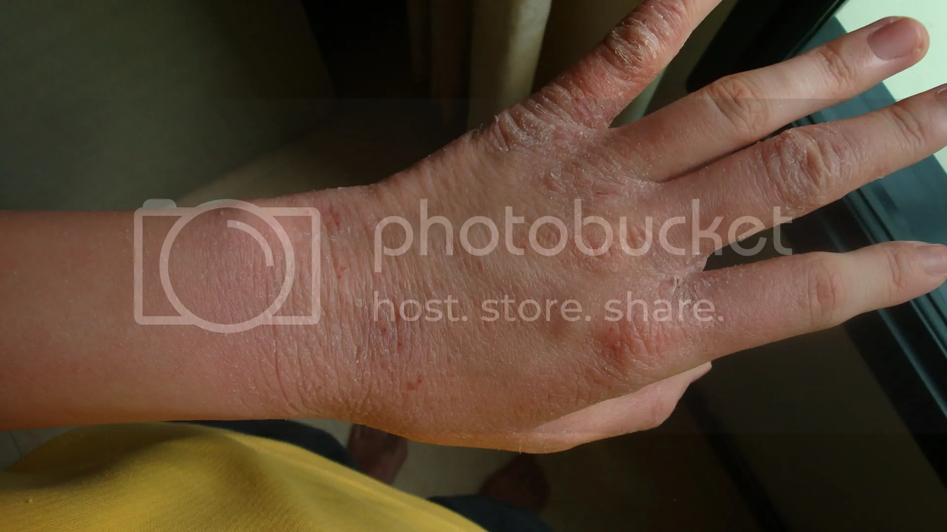 topical steroid withdrawal, wrist, red skin, not eczema