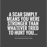 When I see your scars.