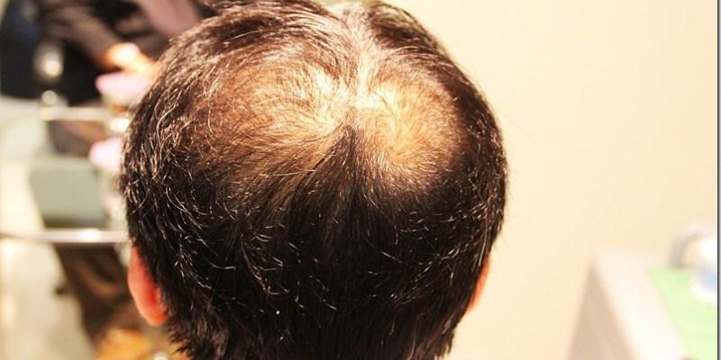 頭皮護理|【樂美專業健髮沙龍】拯救頭上毛髮稀疏的頂上問題