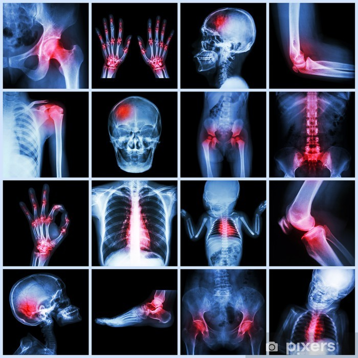 x ray multiple part of human and arthritis multiple disease poster pixers we live to change