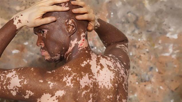 Cliché artistique de Lee Thomas atteint du vitiligo