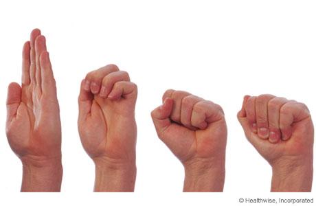 تمارين اليد الخاصة بمرضى التهابات المفاصل 426853.jpg