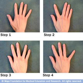 تمارين اليد الخاصة بمرضى التهابات المفاصل 426858.jpg