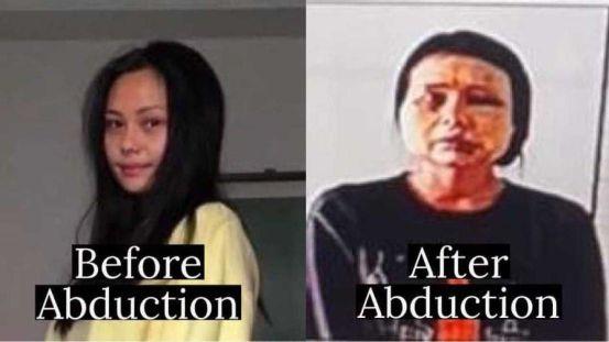 """체포 된 지 하루 만에 공개 된 사진 … """"부어 오른 부어 오른""""고통스러운 엄마"""