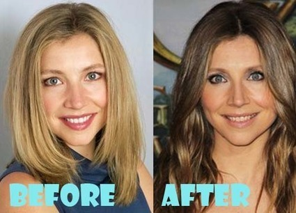 sarah chalke plastic surgery