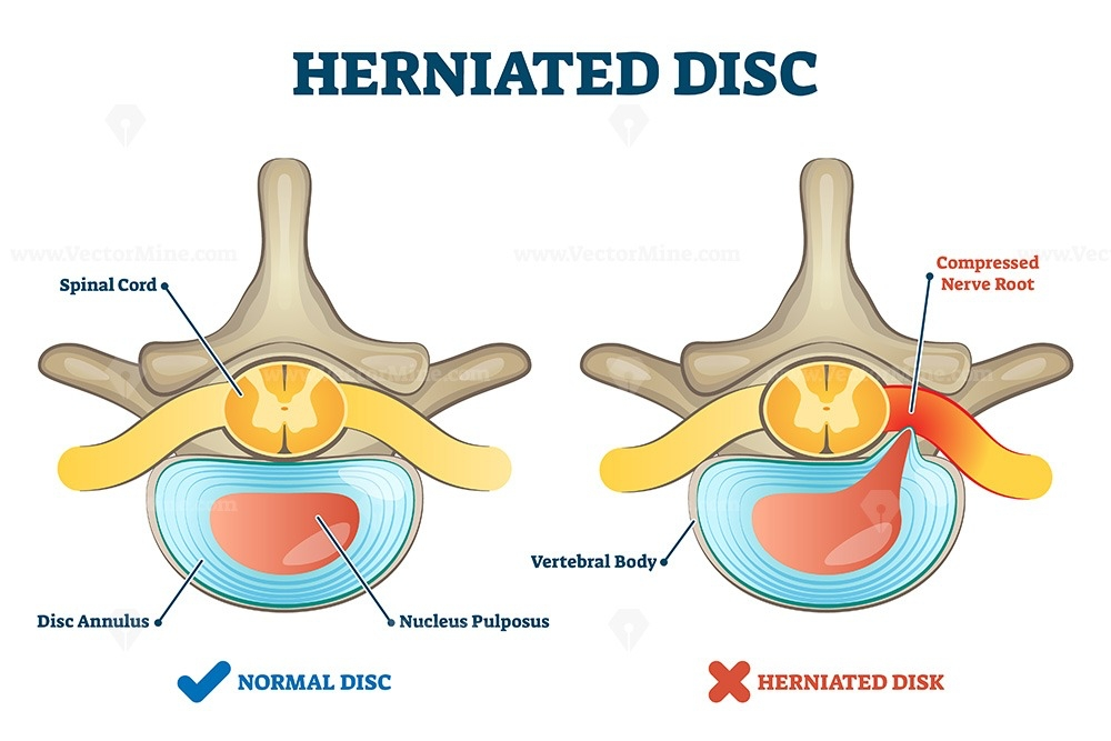 Herniated disc injury as labeled spinal pain explanation ...