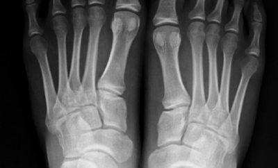 Si fa amputare i mignoli dei piedi per non sbatterli sui