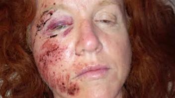 Kerry Surman a été blessée par une bernache du Canada.