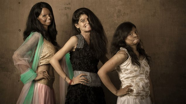 Des victimes d'attaques à l'acide en Inde, font une séance de photos.