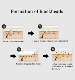 blackhead remover peel off facial nose black mask acne exfoliator cleanser deep cleansing skin care [ 1200 x 1200 Pixel ]