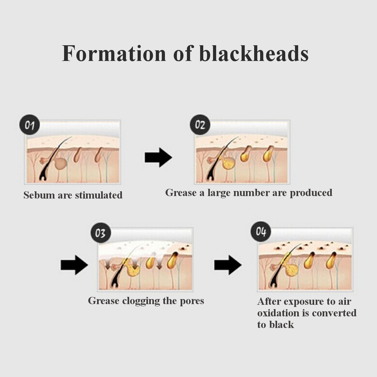 hight resolution of blackhead remover peel off facial nose black mask acne exfoliator cleanser deep cleansing skin care