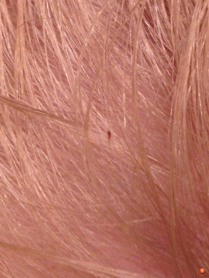 What Do Head Lice Look Like In Blonde Hair Hairsstyles Co