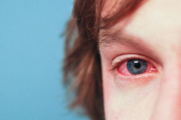 季節交替時,眼睛癢,眼睛腫怎麼辦?   TechNews 科技新報