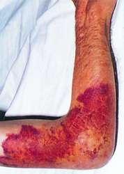 Hemarthros  definition of hemarthros by Medical dictionary