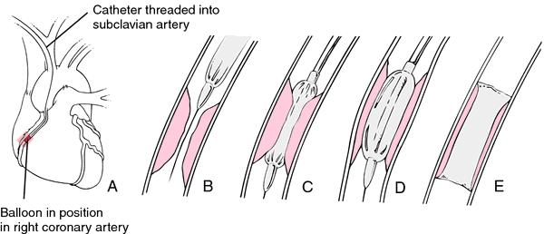Percutaneous transluminal angioplasty   definition of percutaneous transluminal angioplasty by Medical dictionary