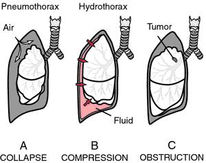 Retrocardiac opacity icd 9 code