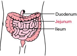 billroth 1 diagram twist lock plug wiring jejunum
