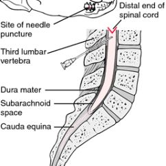 Lumbar Puncture Diagram 110cc Atv Wiring Taotao Definition Of By Medical Dictionary