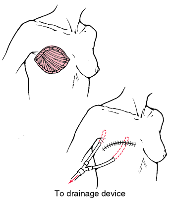 Image result for simple mastectomy