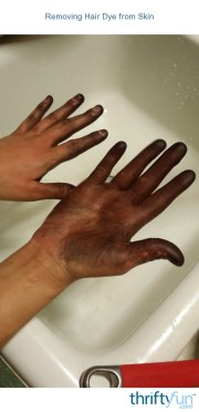 removing hair dye skin thriftyfun