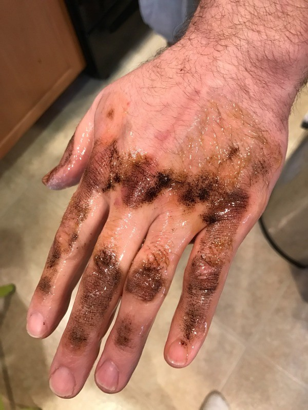 Removing Roof Tar From Skin With Olive Oil ThriftyFun
