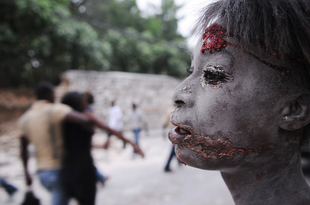 a survivor of the Haiti earthquake