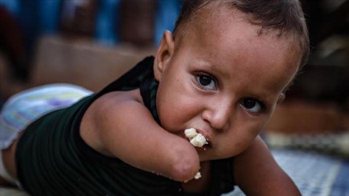 Doğuştan elleri ve kolları olmayan minik Esyef kendi kendine yemek yiyebilmek istiyor