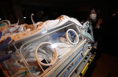 Suriye'de dünyaya gelen siyam ikizleri ambulans uçakla Ankara'ya getirildi