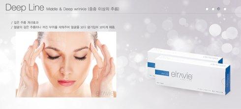 韓國本土有哪些玻尿酸品牌效果比較好?-非常愛美
