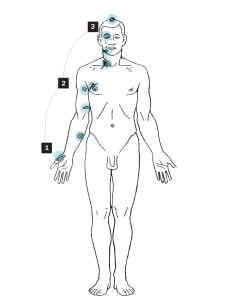 autopsy-image