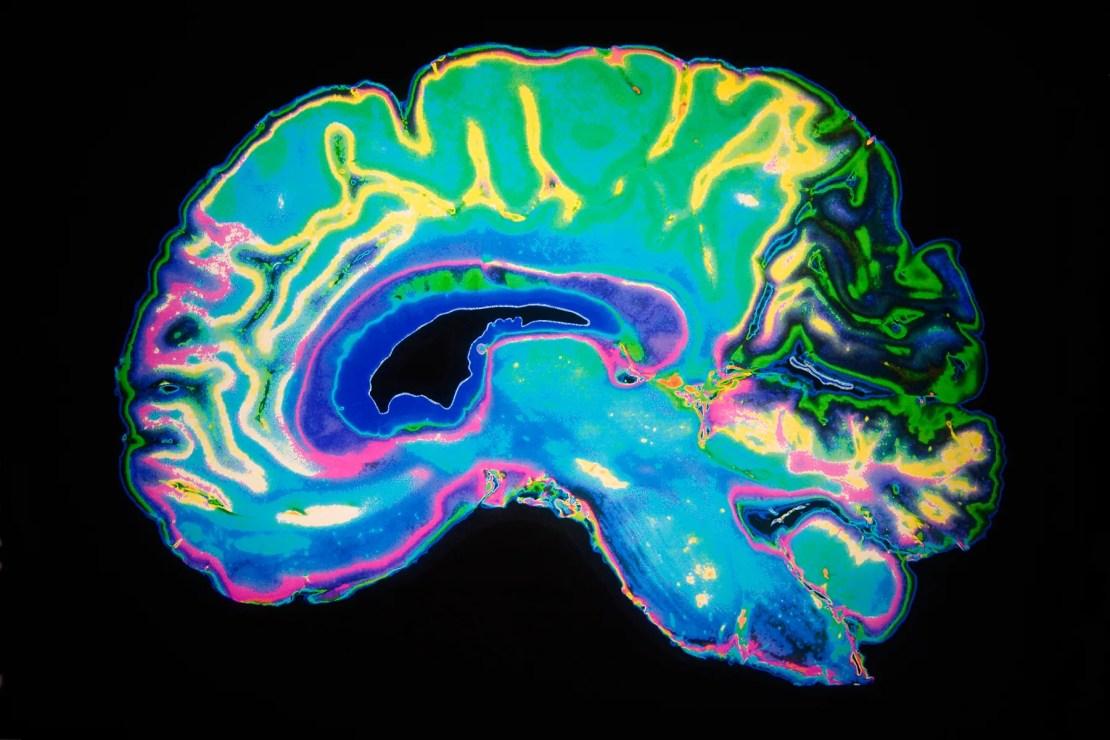 colorful brain image
