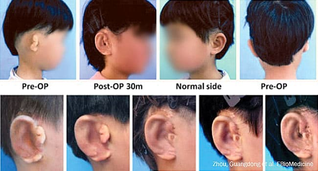 chinese children regrown ears story