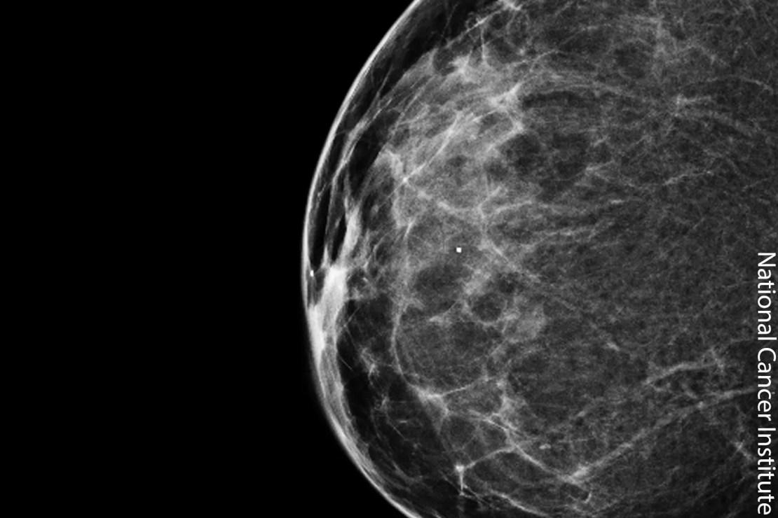 photo of 3D mammogram
