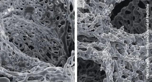 coronavirus lung images one