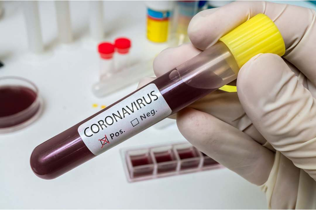 photo of blood vial