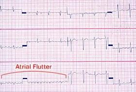 atrial flutter symptoms causes