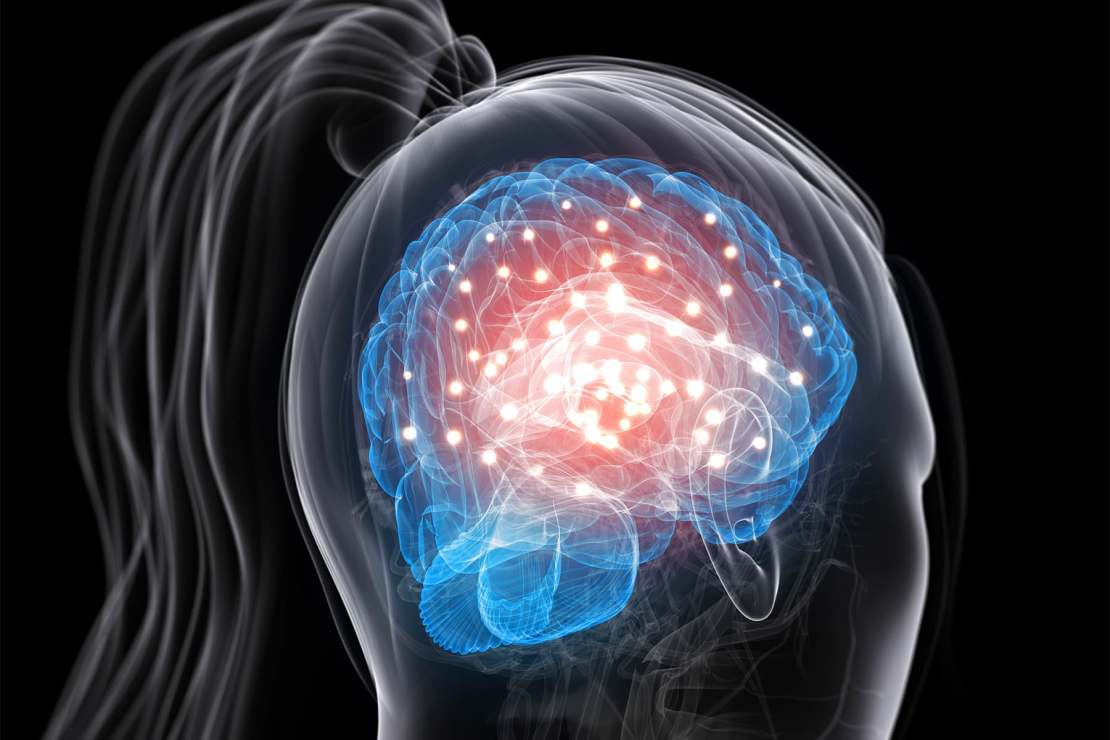 photo of brain activity in woman