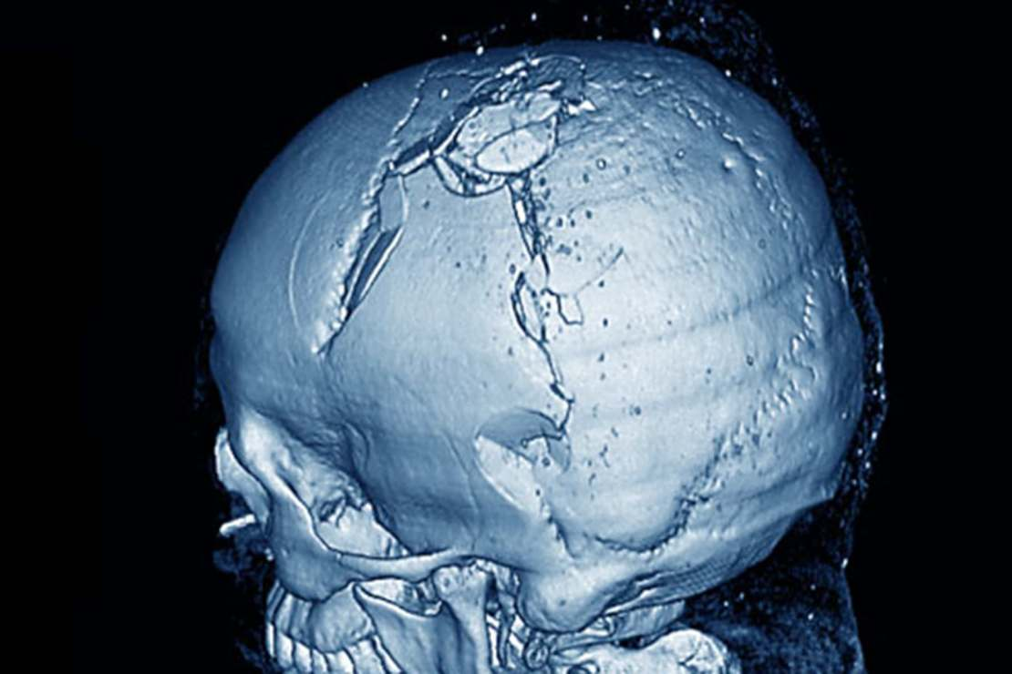 3d scan of fractured skull