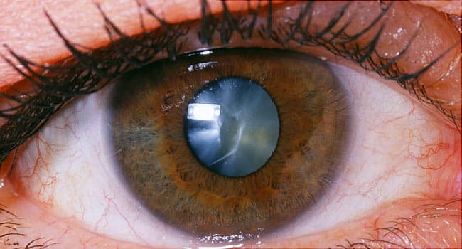 Image result for cataracts