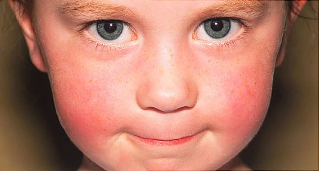Pictures of Childhood Skin Problems: Common Rashes and More