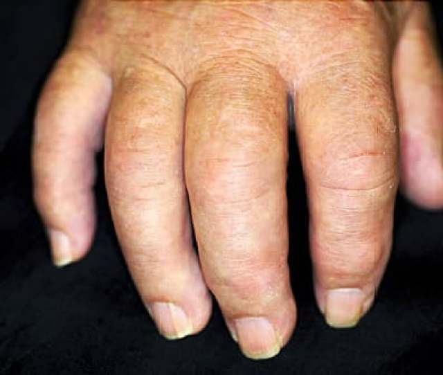 Psoriatic Arthritis Inside Out