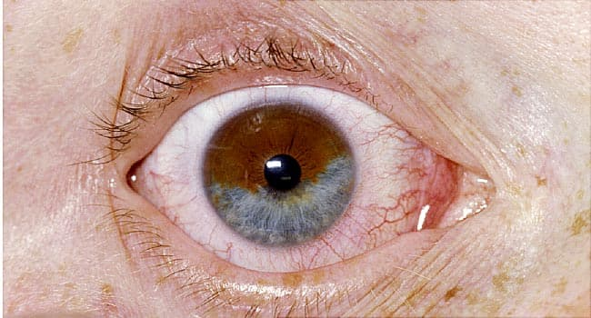 pictures of unusual eye