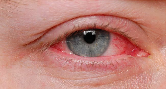 Pink Eye (Conjunctivitis): Symptoms, Causes, Treatment, Prevention