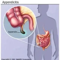 Where Are Your Appendix Located Diagram Motion Sensor Light Wiring Uk Appendicitis Early Signs Symptoms Causes Surgery Recovery This Can Lead To Peritonitis A Serious Inflammation Of The Abdominal Cavity S Lining Peritoneum That Be Fatal Unless It Is Treated Quickly With