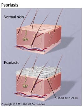 https://i0.wp.com/img.webmd.com/dtmcms/live/webmd/consumer_assets/site_images/articles/health_and_medical_reference/skin_and_beauty/understanding_psoriasis_basics.jpg