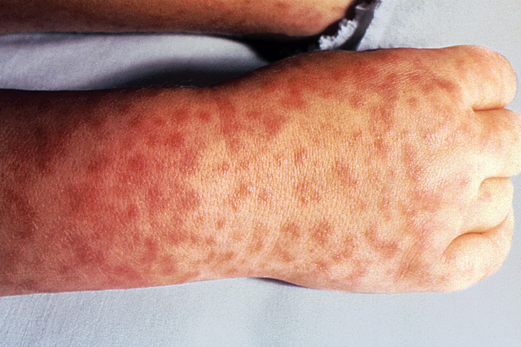 Pictures of Viral Rashes in Adults & Children