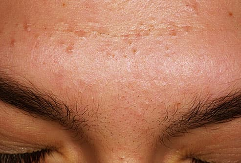 Image result wey dey for types of acne and how to treat them?