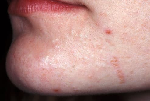 Close up of mild acne